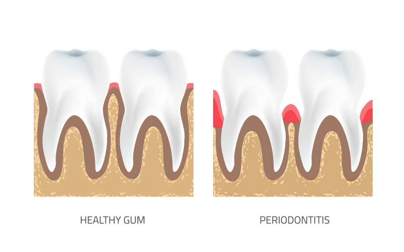 Gum Disease Treatment Sunbury|Lotus Smiles Dental